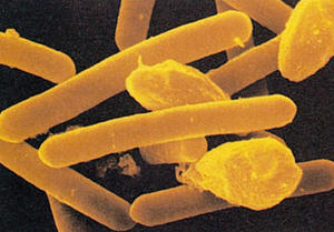 clostridium botulinim Palavras-chave: clostridium botulinum, botulismo alimentar, botulismo infantil abstract foodbourne botulism occurs after ingestion of.